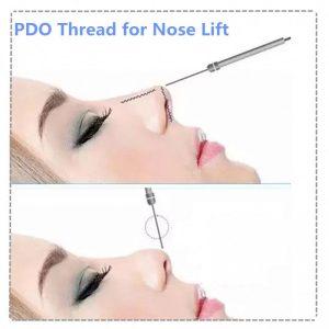 nose threadlift Sing