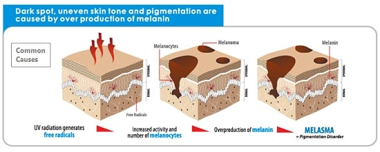 Common Skin Pigmentation Causes