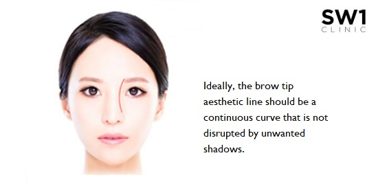 Ideal Brow Tip Aesthetic Line