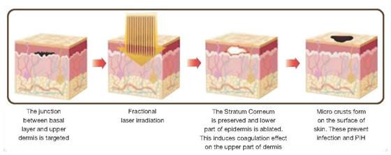 BB Aquatouch Laser Therapeutic Mechanism