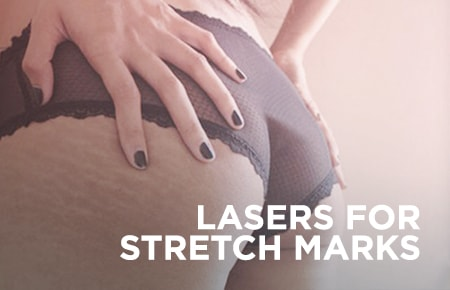 Lasers For Stretch Marks