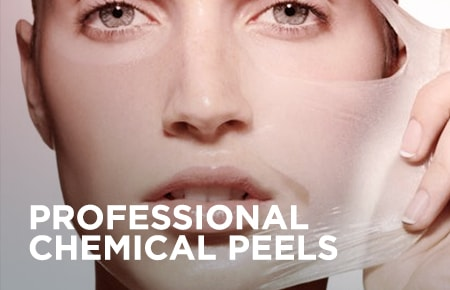 Professional Chemical Peels