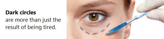 Eye Revitalift