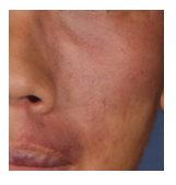 Capillary malformation or Port Wine Stain