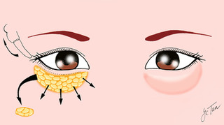 Eyebags Removal (Lower Blepharoplasty)