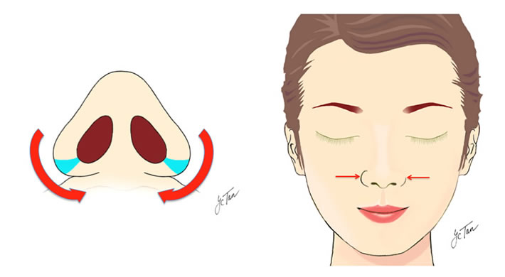 Nose Reshaping, Reduction And Reconstruction Surgery
