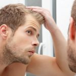 Male Pattern Hair Loss: The 7 Important Things to Know